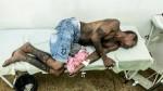 """Brasil: ONU exige """"tolerancia cero"""" ante """"grave"""" ataque contra indígenas - Noticias de personas amputadas"""