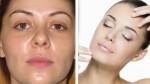 Piel grasa: remedios caseros para controlar el brillo en el rostro - Noticias de aguas